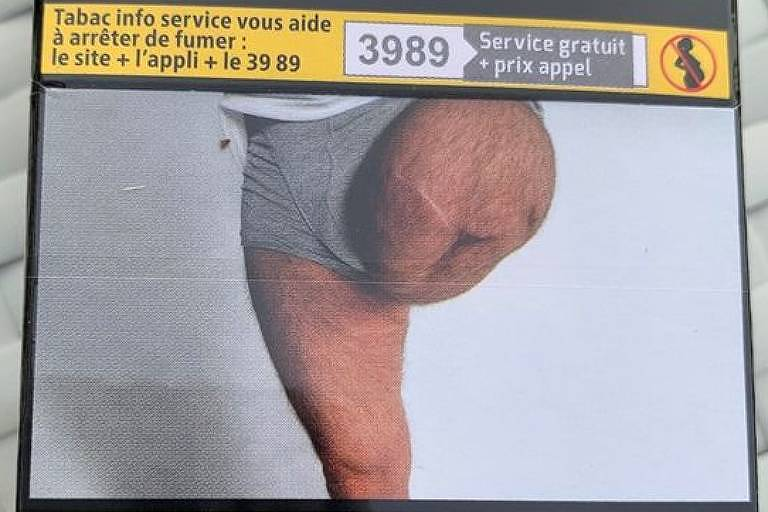 Homem descobre foto da própria perna amputada em pacote de tabaco