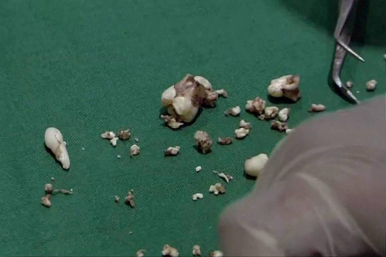 Os médicos descobriram 526 dentes dentro do tumor