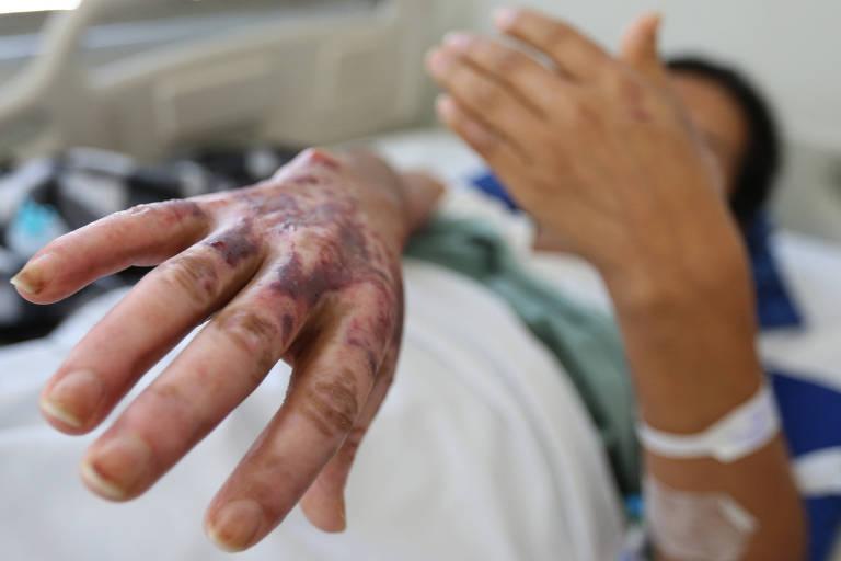 Paciente cobre o rosto mas mostra queimaduras que sofreu nas mãos