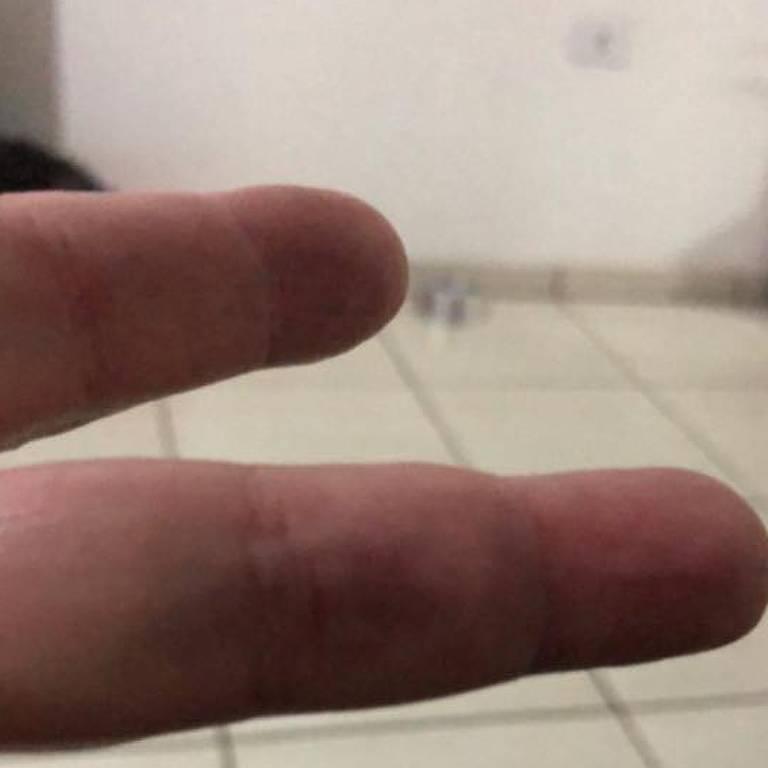 O dedo do torcedor Rogério Leme, que acusa a Polícia de tê-lo agredido na partida entre Corinthians e Palmeiras
