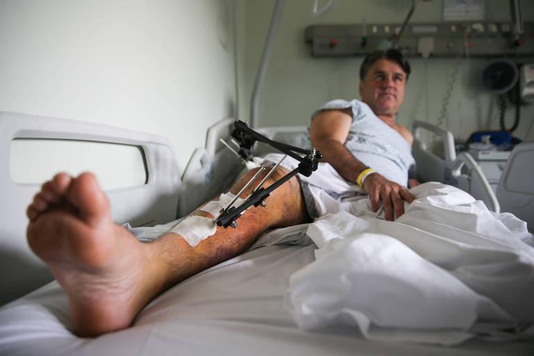 Homem deitado em leito de hospital com a perna direita estendida repleta de pinos e curativos