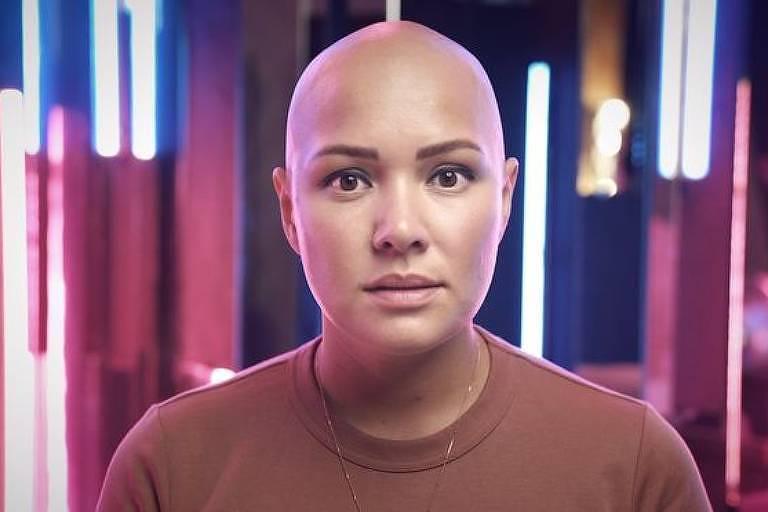 Liliya diz que sofreu bullying por ter alopecia areata, uma condição que causa perda de cabelo