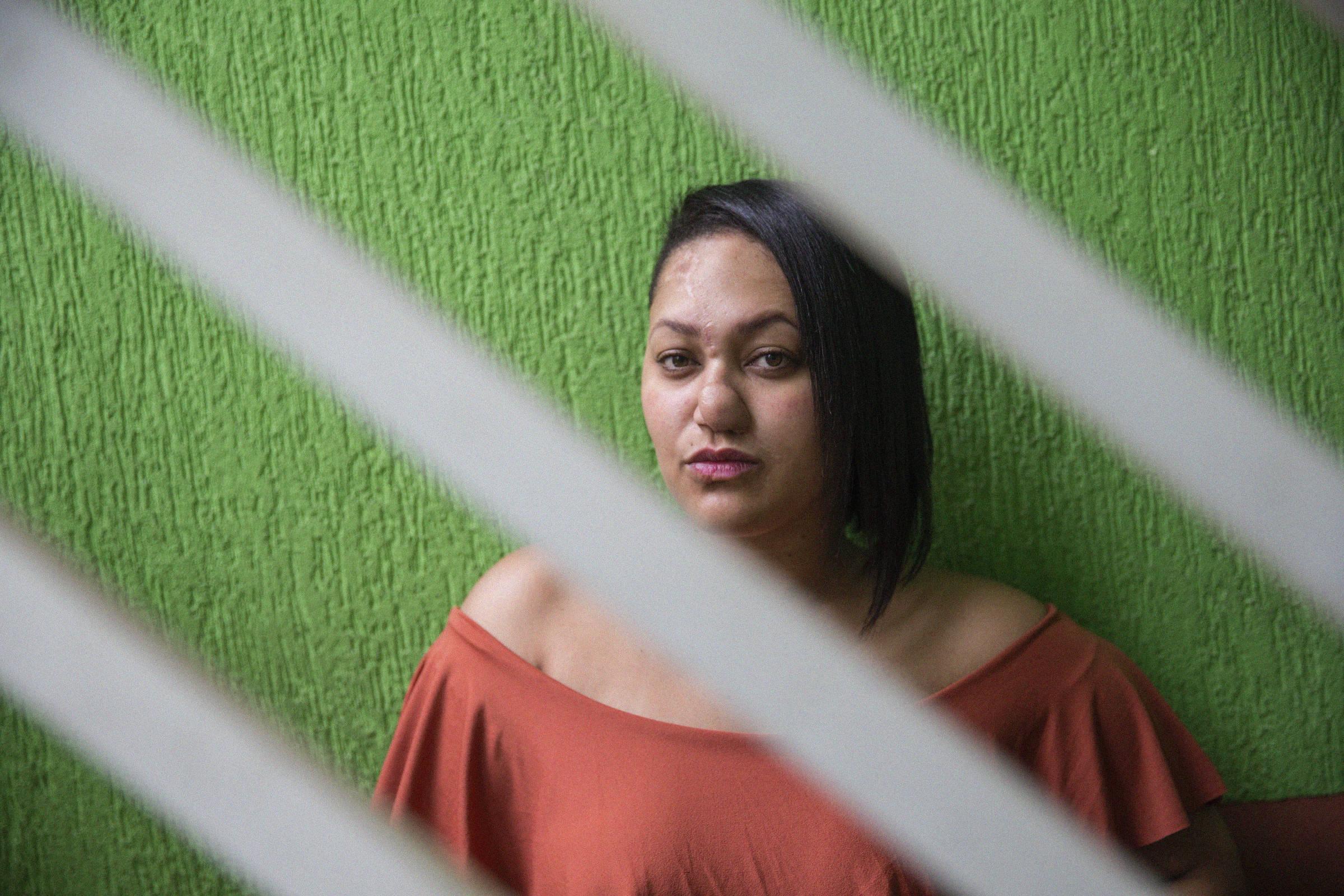 Talita Oliveira, 29, que teve o nariz e uma orelha arrancados a mordidas pelo ex