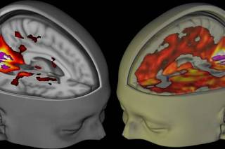Handout shows the brains of subjects lying awake with their eyes closed, under a placebo and the drug LSD, when being examined using functional MRI