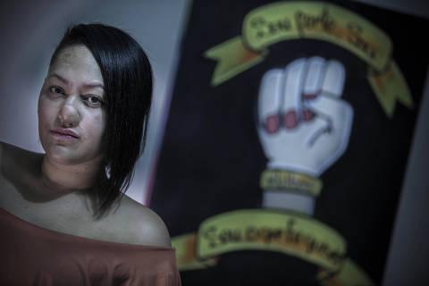 COTIDIANO  - SP - Talita Oliveira, que teve o nariz arrancado a mordidas pelo ex. Ela teve que se submeter a v‡rias cirurgias. 06/09/2019.  Foto Marlene Bergamo/Folhapress. 017 -  SELENE 575134
