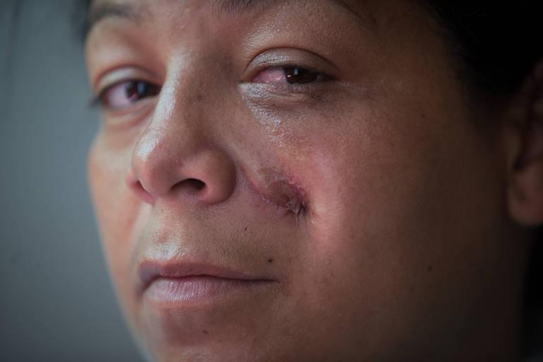 PM dá tiro no rosto de mulher em SP