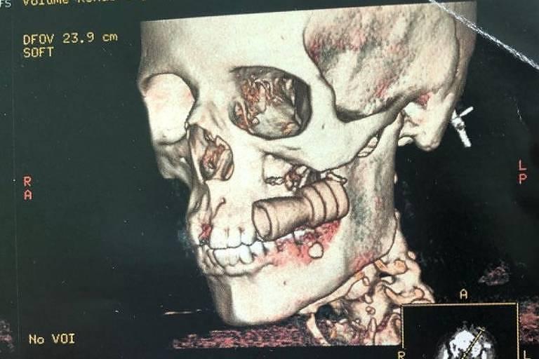 Exame mostra projétil alojado no rosto de Rosimeire Silva, 34, após disparos da PM