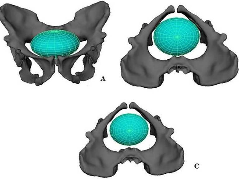 Reconstituição do parto numa Australopithecus sediba