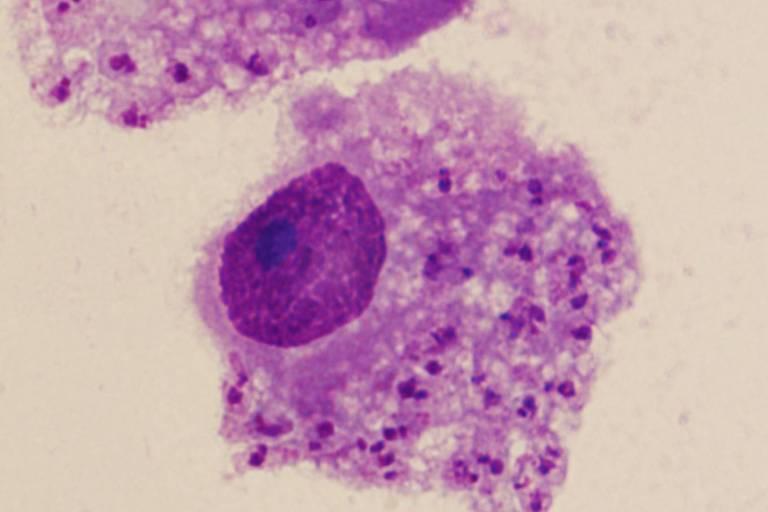 Novo parasita dentro de uma célula humana (cada pontinho roxo-escuro corresponde a um micro-organismo)