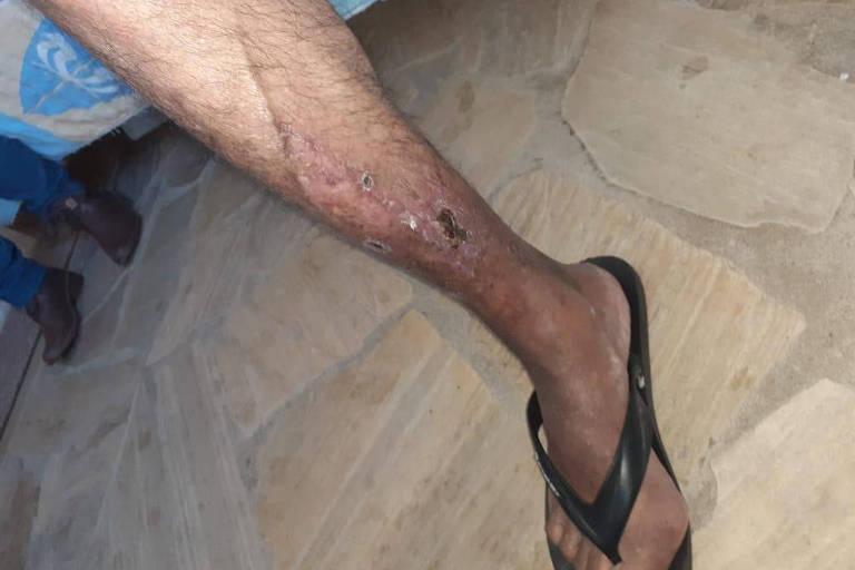 Lesões em vítimas de maus tratos na clínica em imagens que fazem parte do inquérito da polícia