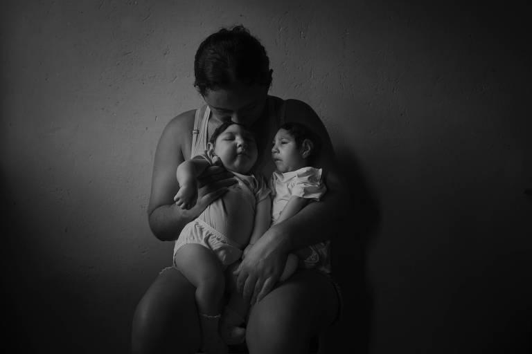 Epidemia de zika levou a mais registros de outros defeitos congênitos