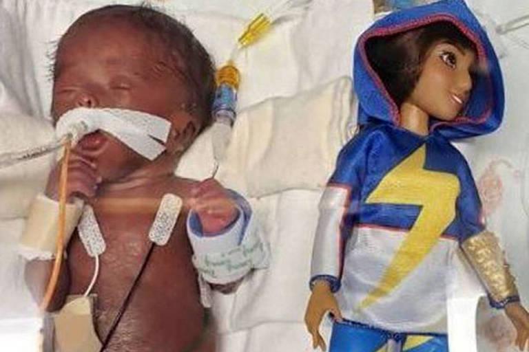 Bebê menor que uma boneca Barbie sobrevive após nascer com 360 gramas