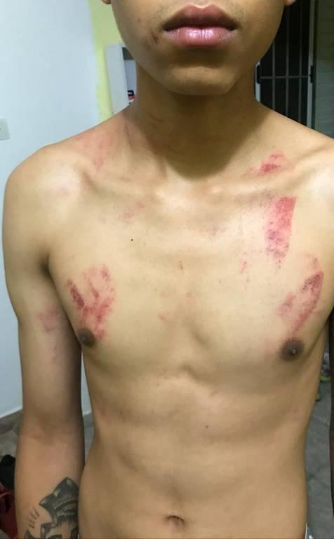 Adolescente espancado por sete seguranças da CPTM