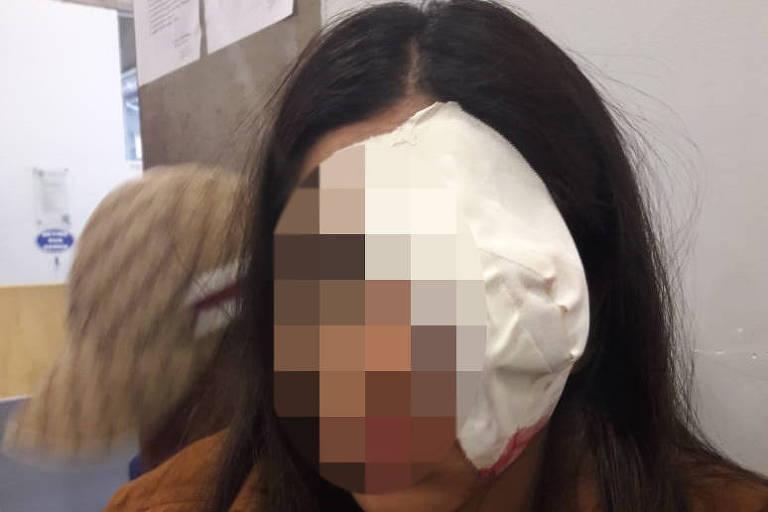 Uma adolescente de 16 anos ficou cega do olho esquerdo, segundo sua mãe, após a jovem ser atingida por uma bala de borracha durante a dispersão de um baile funk, em Guaianases (zona leste da capital paulista).