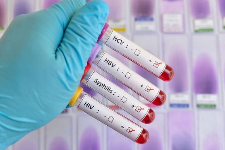 Profissional de saúde segura tubos de ensaio com marcações sobre doenças