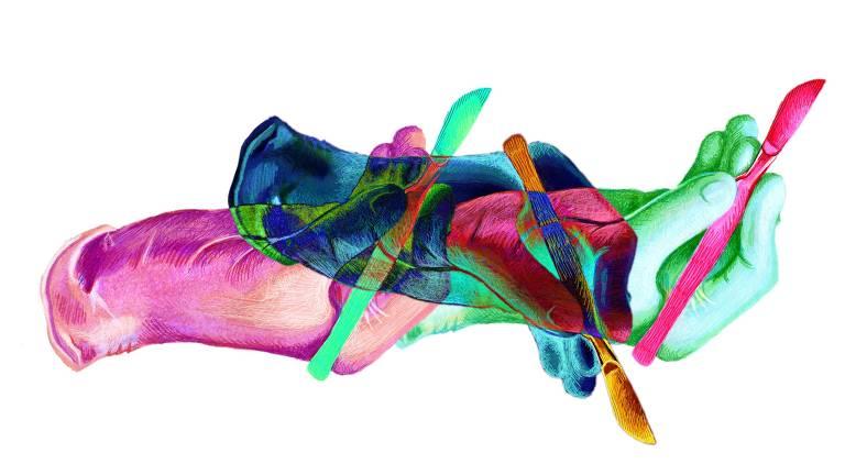 Ilustração colorida mostra mãos segurando bisturis