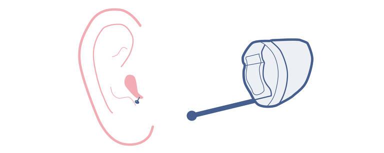 Tipos de aparelhos auditivos