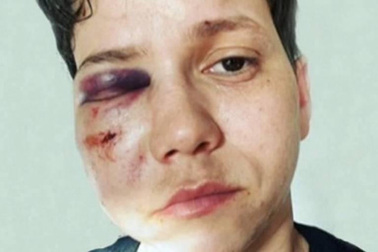 A youtuber Karol Eller após ter sido agredida no Rio de Janeiro