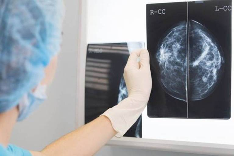 Exame de raio-X