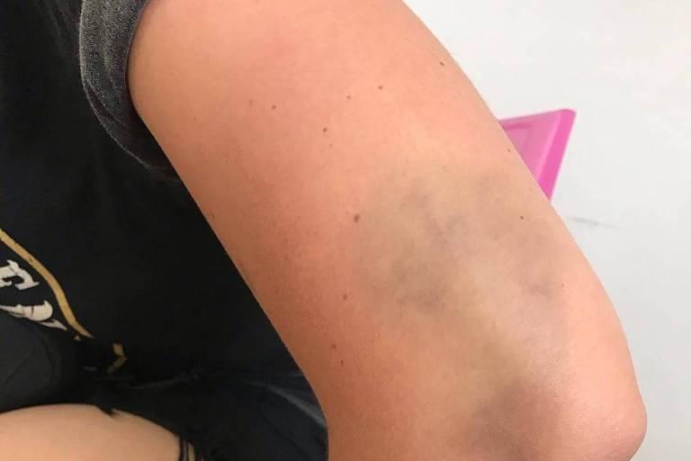 Mayara Mahmad, 26, que diz ter levado um soco por homofobia em fila da montanha-russa no Hopi Hari, em Vinhedo (SP)