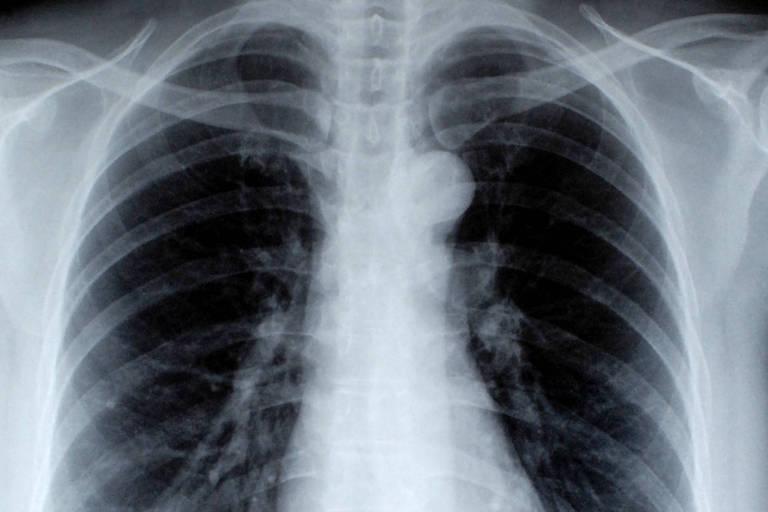 Diminuição de mortes por câncer de pulmão puxou queda de taxa de mortalidade por câncer nos EUA
