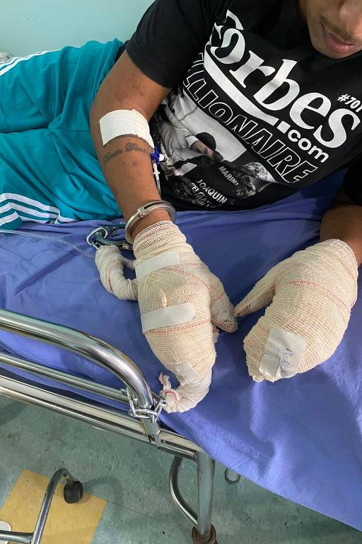 Doença infecciosa desconhecida atinge presos da penitenciária Monte Cristo (RR)