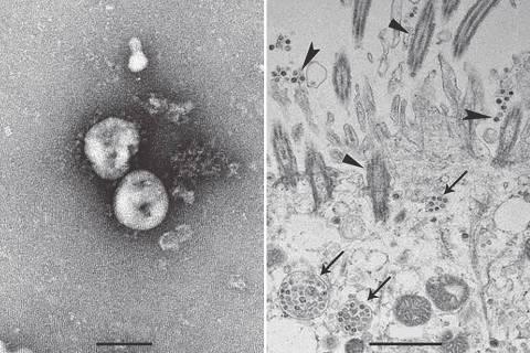 OMS admite erro e eleva avaliação de risco de coronavírus