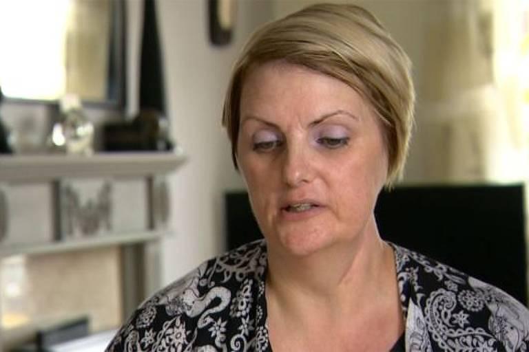 Melanoma: 'Perdi uma orelha por causa do meu vício em bronzeamento artificial'