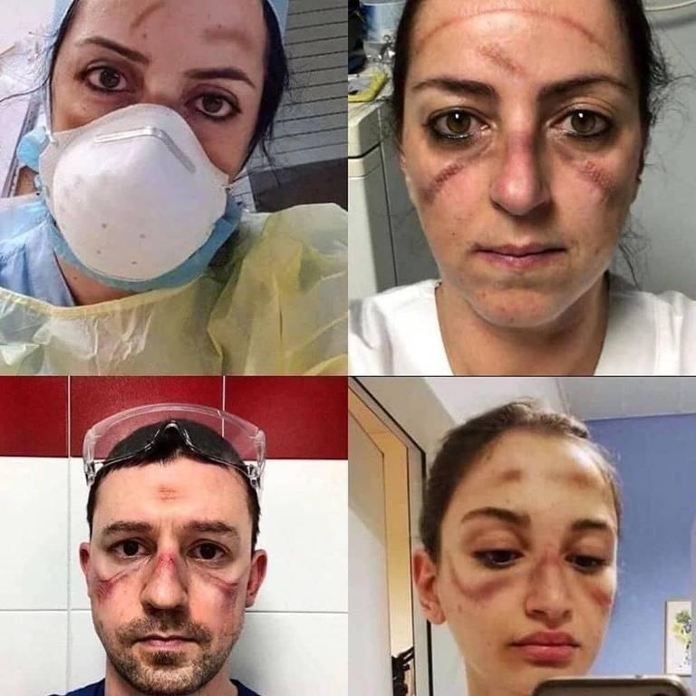 Médicos com rostos marcados por máscaras apertadas