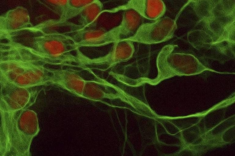 Neurônios produzidos em pesquisa