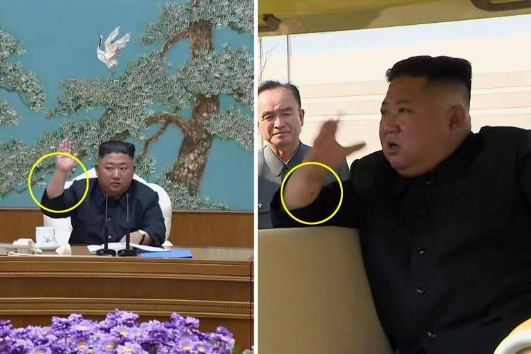 Montagem compara o punho de Kim Jon-un sem (esq.) e com marca (dir.); primeira foto é de 11 de abril e a segunda é desta sexta (1º)