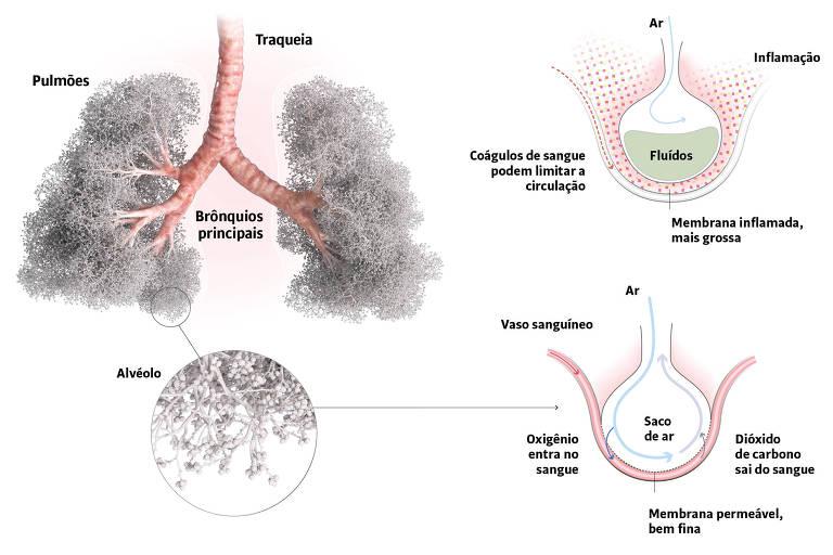 Como funcionam os pulmões