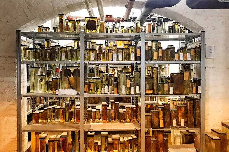 Specimens in the basement of the Berlin Museum of Medical History at the Charité.