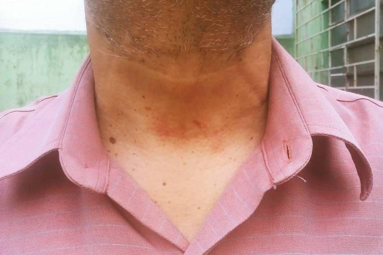 Pescoço do jornalista Paulo de Tarso com marcas após ser agredido por policial militar em Alegrete (RS)