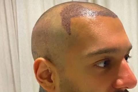 Lucas Lucco mostra implante no couro cabeludo