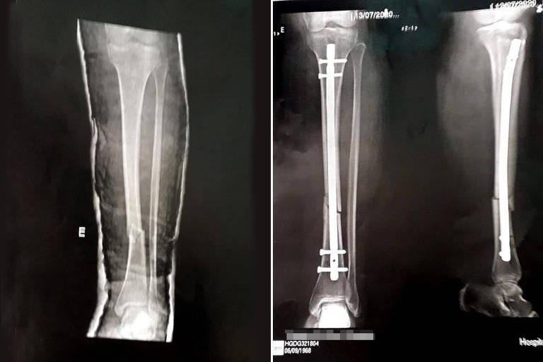 Raio-X da comerciante agredida por um policial, que teve a tíbia quebrada e precisará de cirurgia