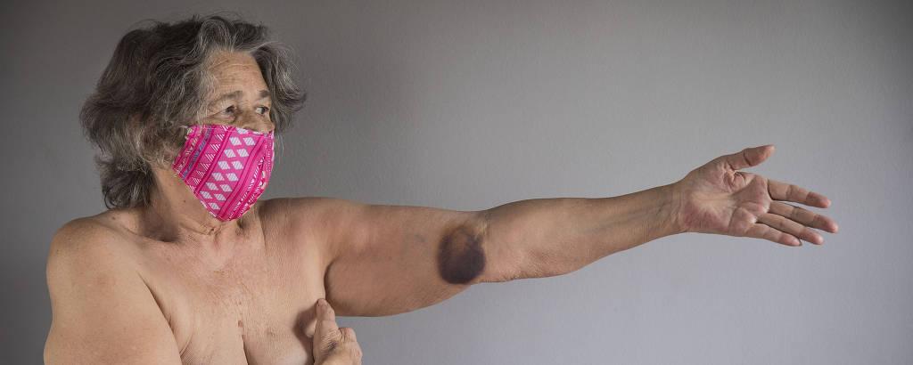 Com um braço cobrindo os seios, Vera Franca, 79, modelo de nu artístico há 59 anos mostra hematoma no outro braço, consequência dos dias de internação causada pelo Covid-19