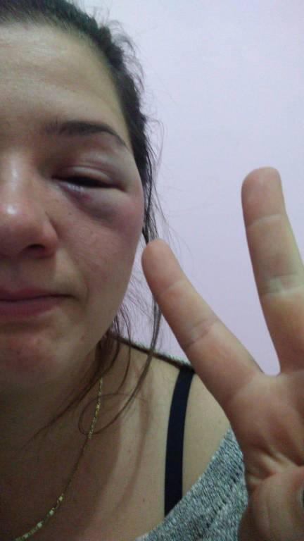 Jainara Perin, 21, com olho machucado após agressão com cassetete