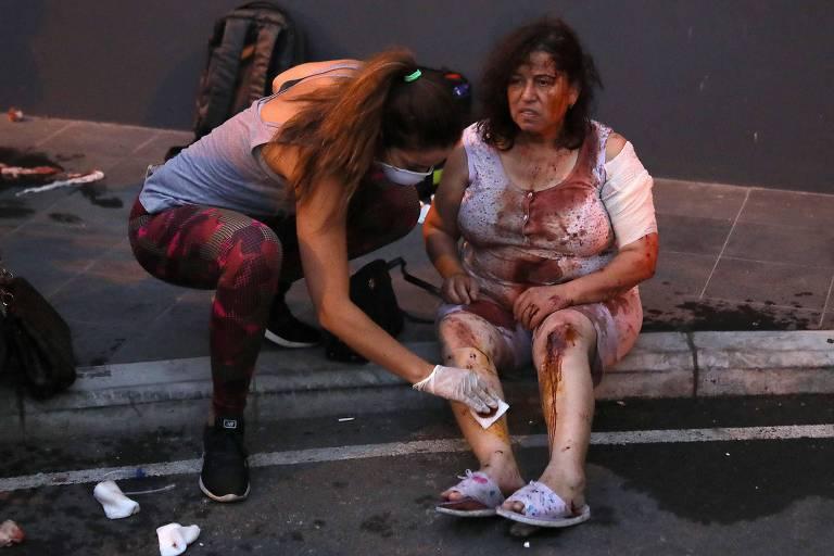 Médicos brasileiros levarão pele de tilápia para tratar queimaduras de feridos no Líbano