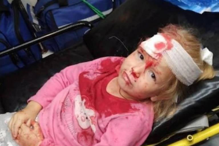 menina loira de blusa rosa com bandagem na cabeça e sangue no rosto