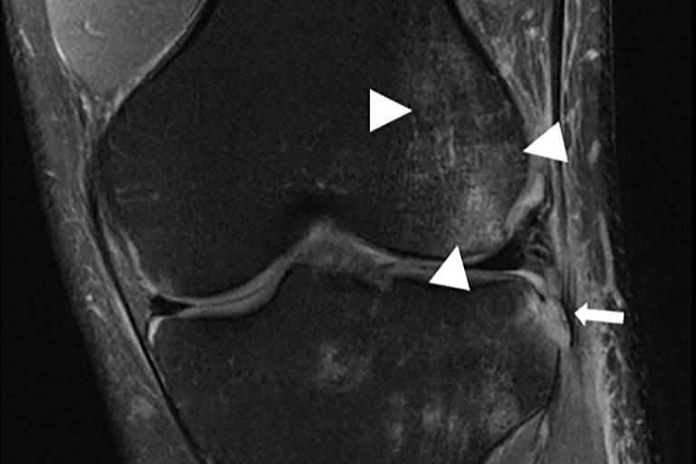 Imagem em preto e branco de um joelho de lado, possui um grupo de triângulos e uma seta indicando regiões lesionadas
