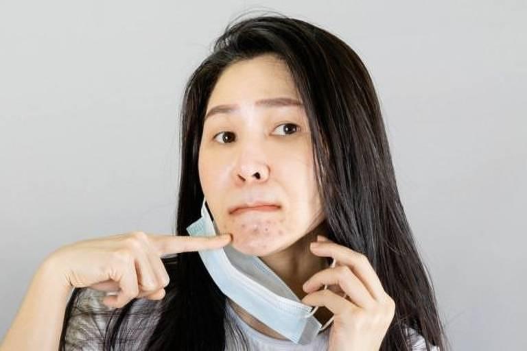 Mascne: como o uso de máscaras para proteger contra o coronavírus está mudando nossa aparência