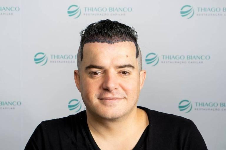 Bruno Belutti faz transplante capilar