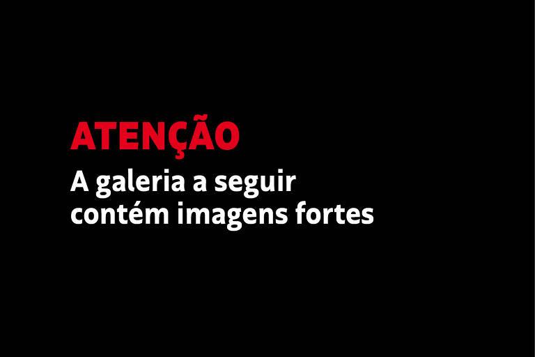 Texto em fundo preto que diz: Atenção, a galeria a seguir contém imagens fortes