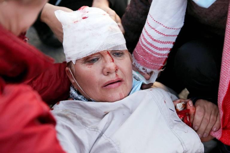 Mulher com sangue no rosto e curativo branco na cabeça