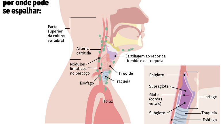 25.10 Viva Bem - Câncer de Laringe
