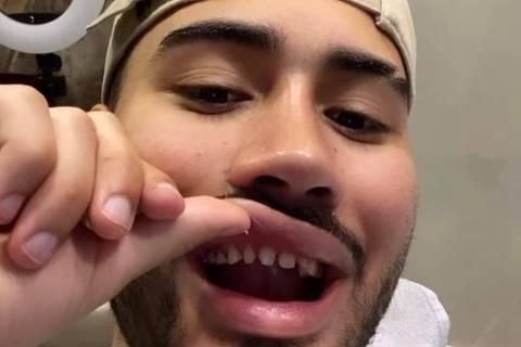 Cantor Kevinho mostra seus dentes sem lentes de contato e choca fãs