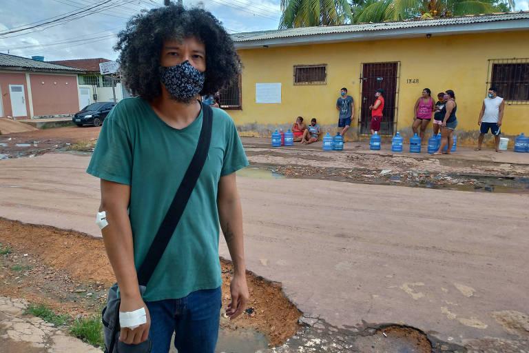 Rapaz de camiseta verde, usando máscara azul, posa para a foto. Ele está com a mão direita com um curativa. Ao fundo, pessoas estão em frente de uma casa amarela