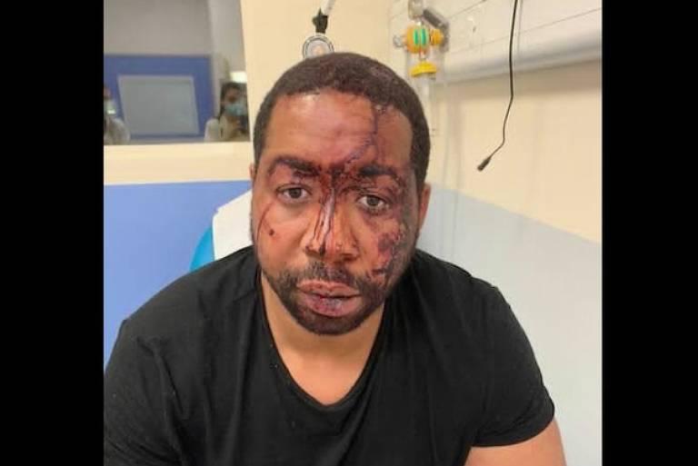 Quatro policiais são indiciados por agressão a homem negro na França