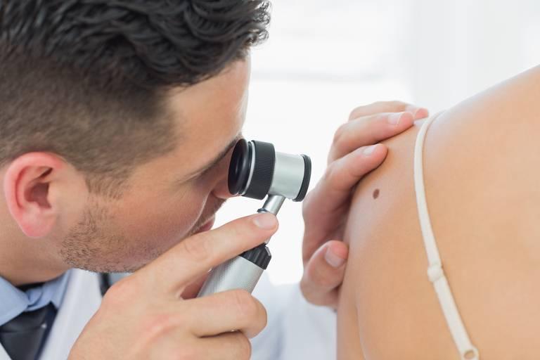 O que é melanoma